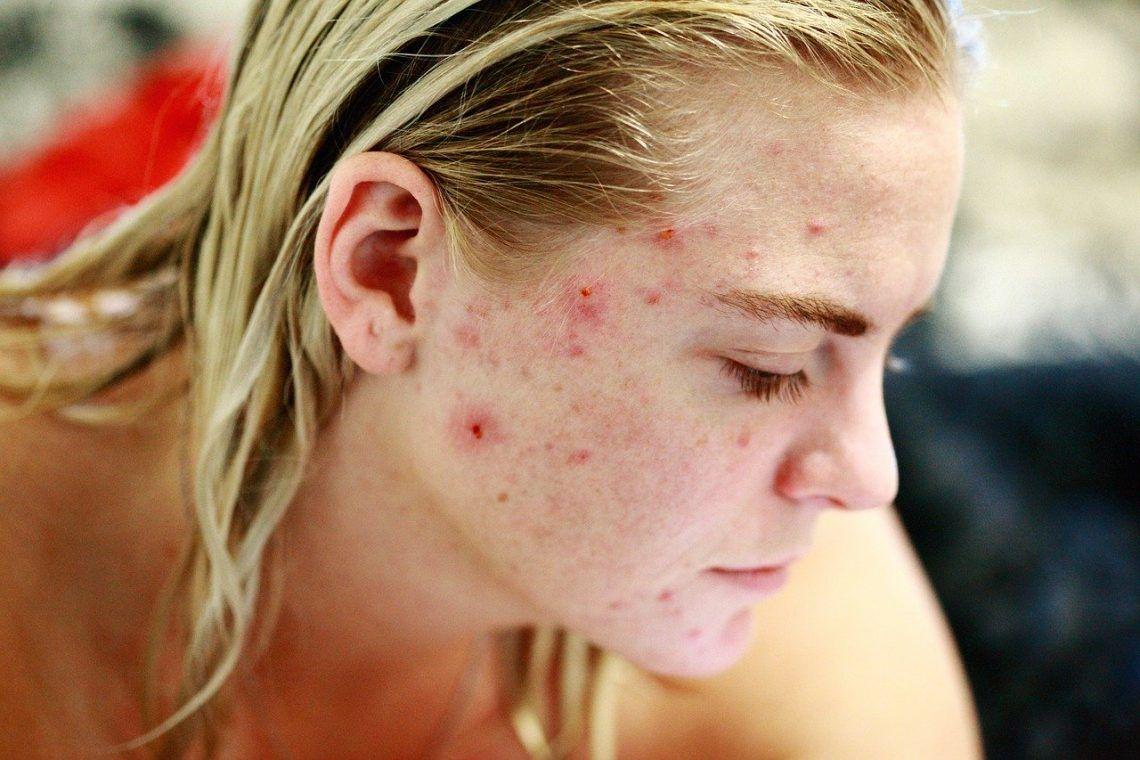 eliminar acne rápidamente